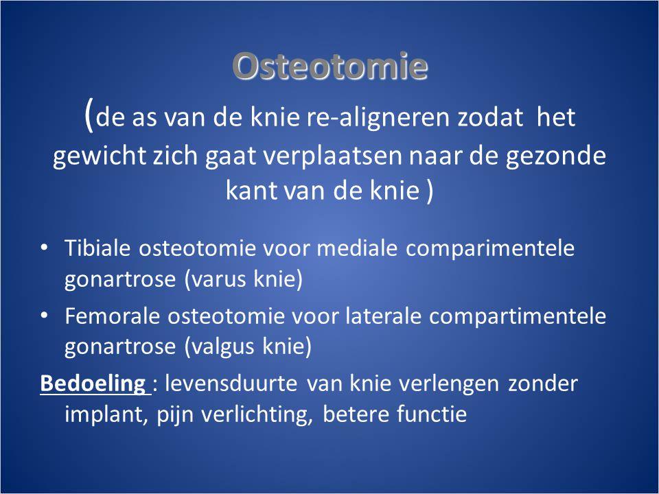 Osteotomie (de as van de knie re-aligneren zodat het gewicht zich gaat verplaatsen naar de gezonde kant van de knie )