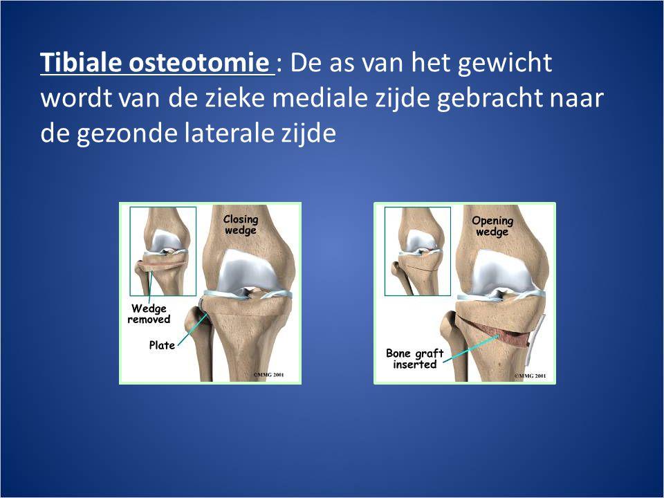 Tibiale osteotomie : De as van het gewicht wordt van de zieke mediale zijde gebracht naar de gezonde laterale zijde