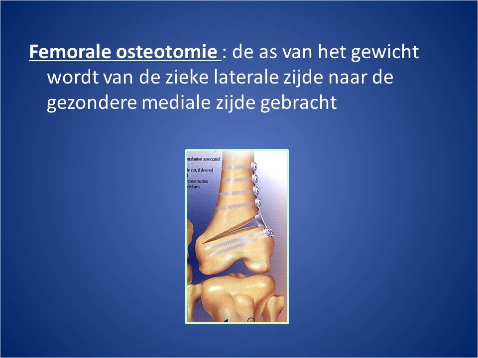 Femorale osteotomie : de as van het gewicht wordt van de zieke laterale zijde naar de gezondere mediale zijde gebracht