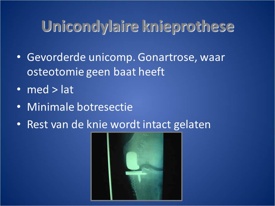 Unicondylaire knieprothese