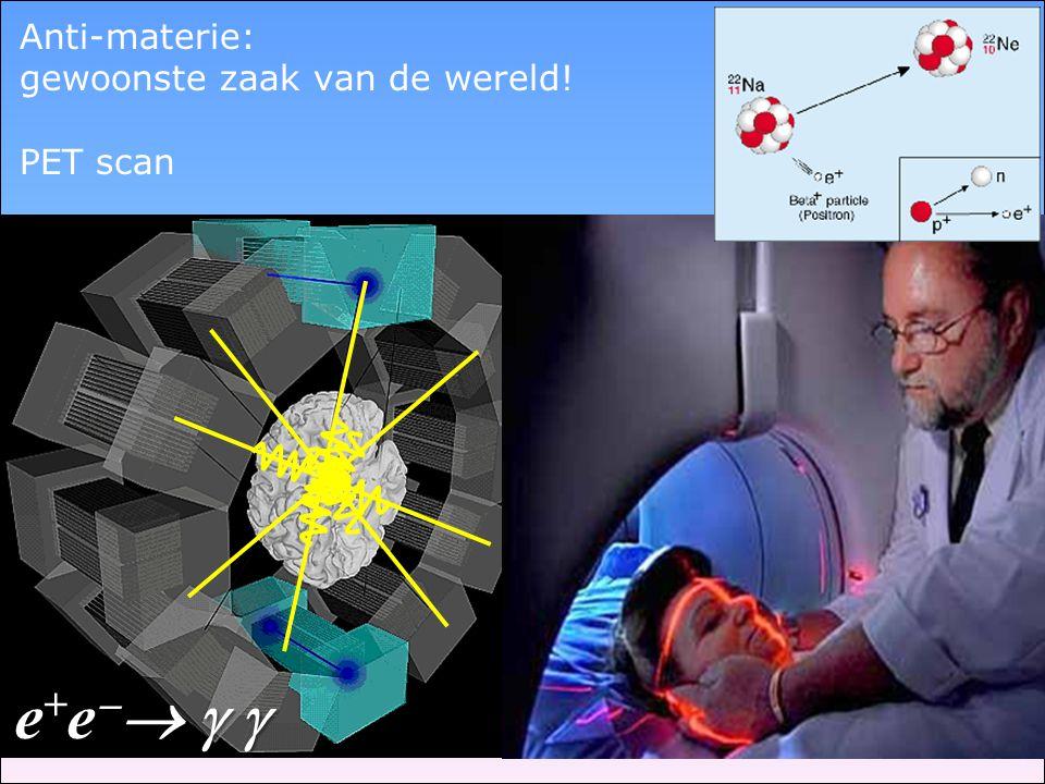 Anti-materie: gewoonste zaak van de wereld! PET scan