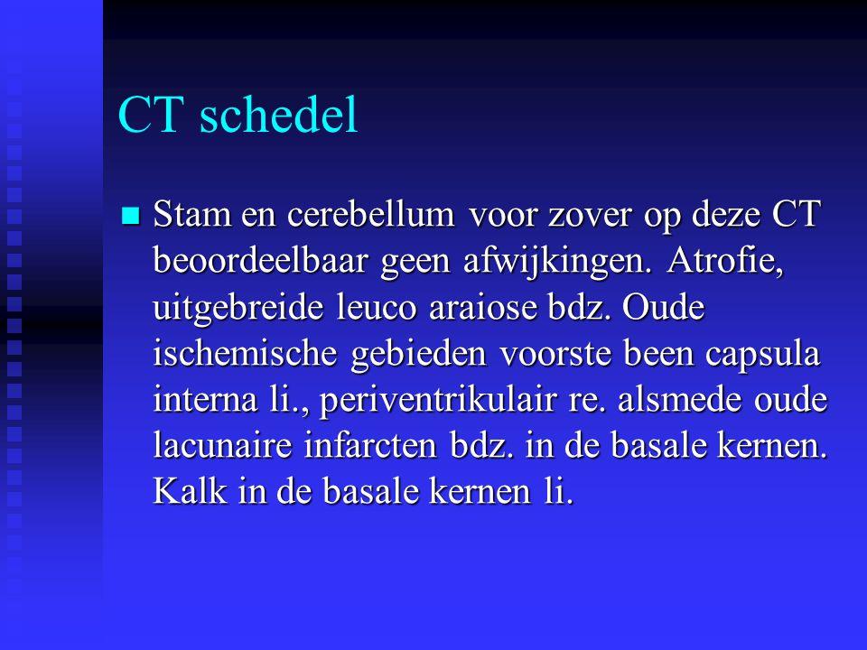 CT schedel