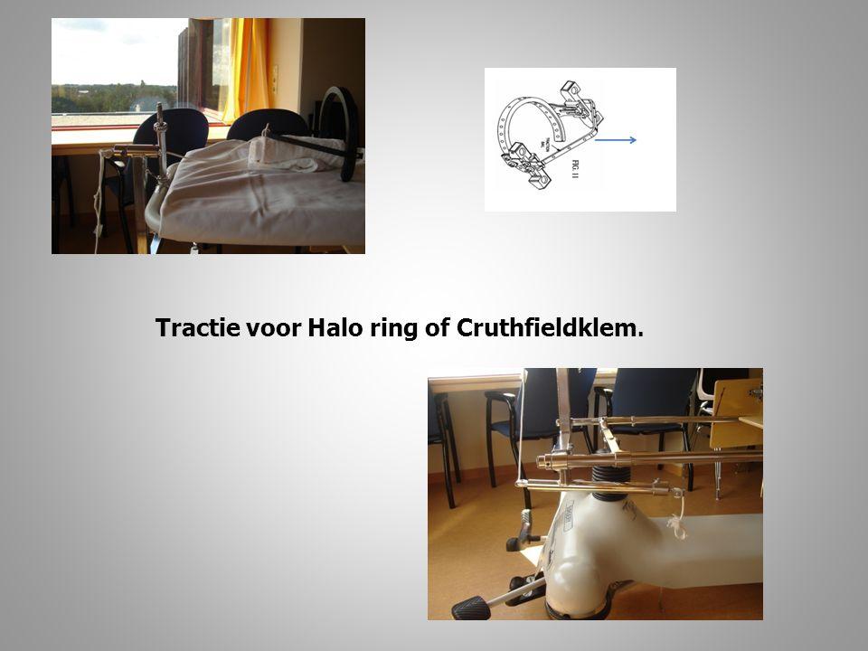 Tractie voor Halo ring of Cruthfieldklem.