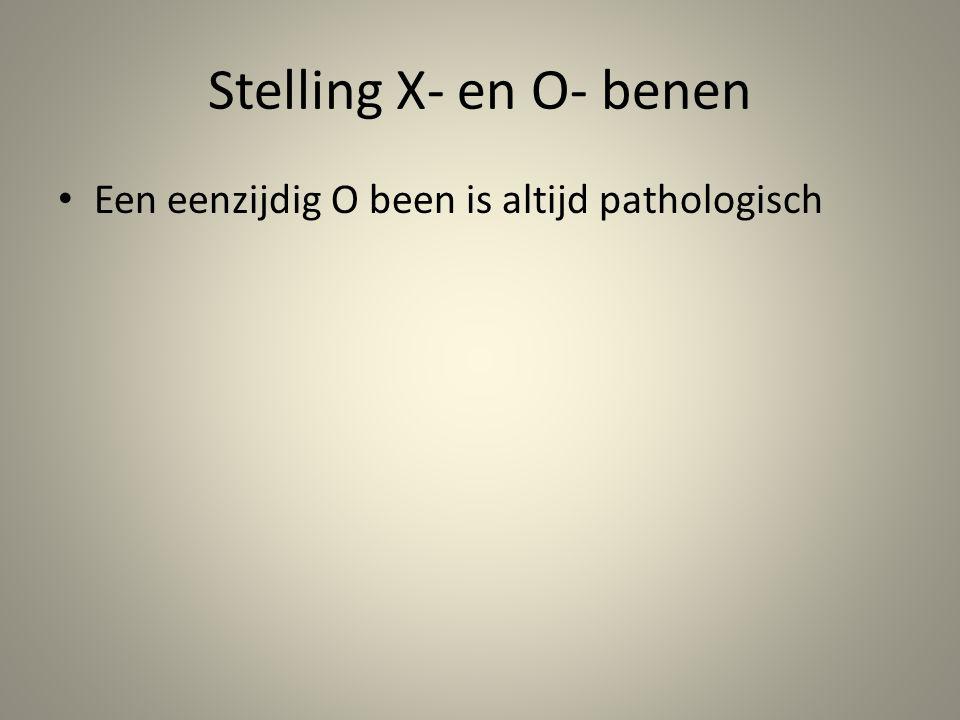 Stelling X- en O- benen Een eenzijdig O been is altijd pathologisch