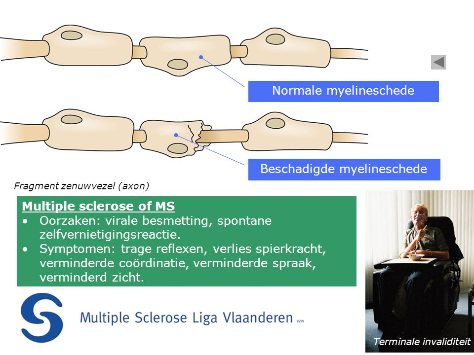 Normale myelineschede