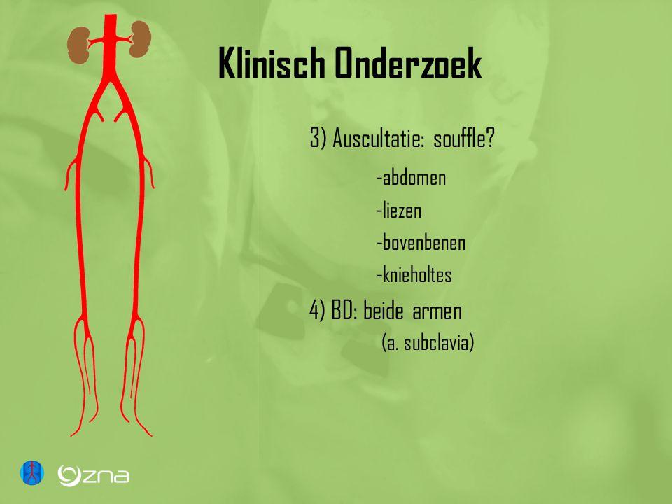 Klinisch Onderzoek 3) Auscultatie: souffle -abdomen