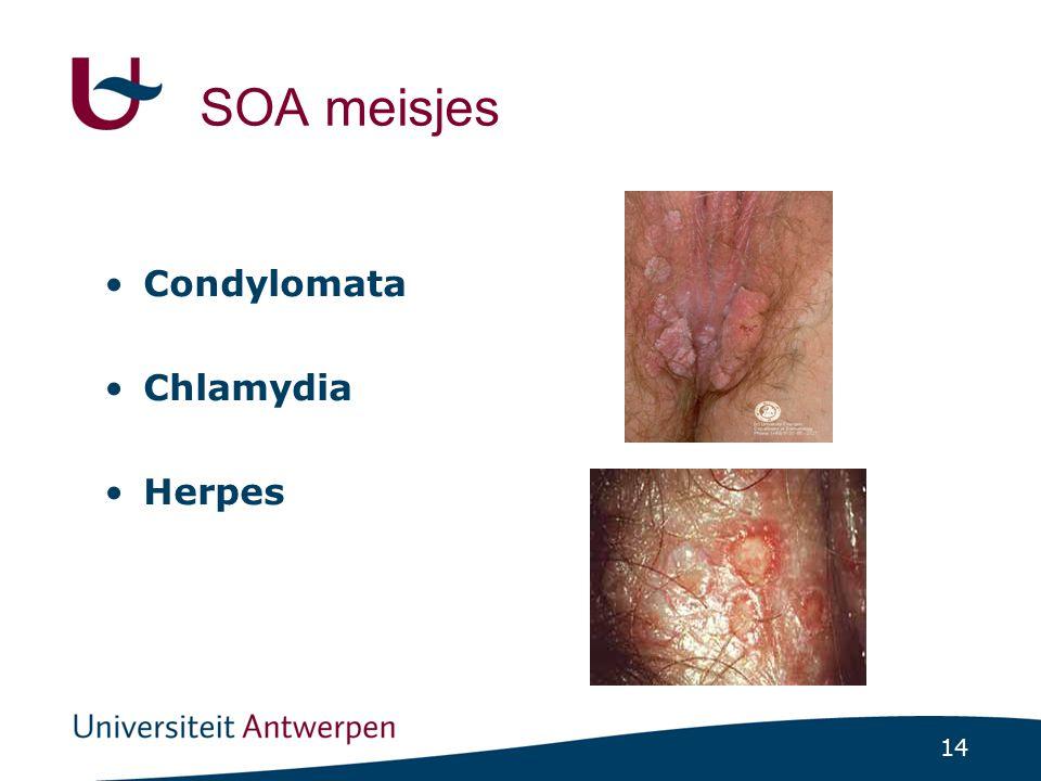 SOA meisjes Condylomata Chlamydia Herpes