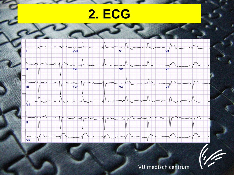 2. ECG