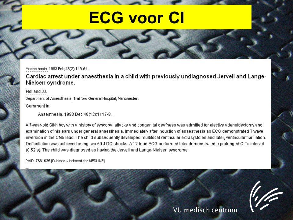 ECG voor CI
