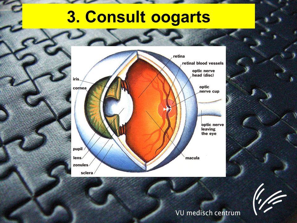 3. Consult oogarts