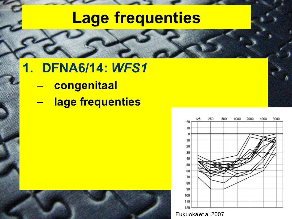 Lage frequenties DFNA6/14: WFS1 congenitaal lage frequenties