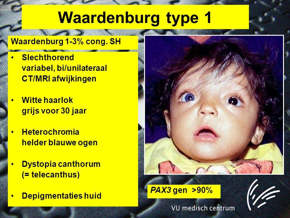 Waardenburg type 1 Waardenburg 1-3% cong. SH Slechthorend