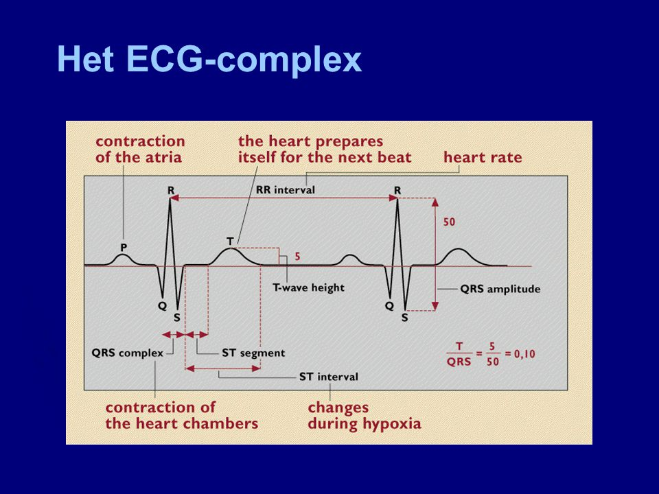 Het ECG-complex