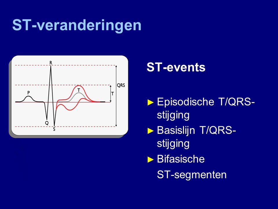 ST-veranderingen ST-events Episodische T/QRS-stijging