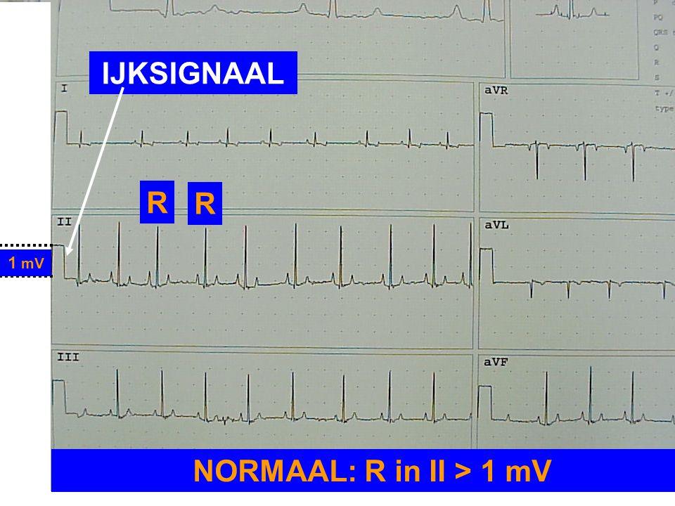 IJKSIGNAAL R R NORMAAL: R in II > 1 mV