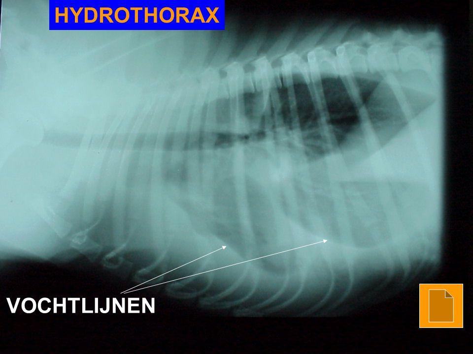 HYDROTHORAX VOCHTLIJNEN