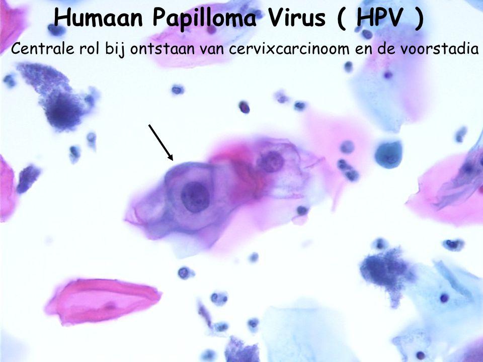 Humaan Papilloma Virus ( HPV )