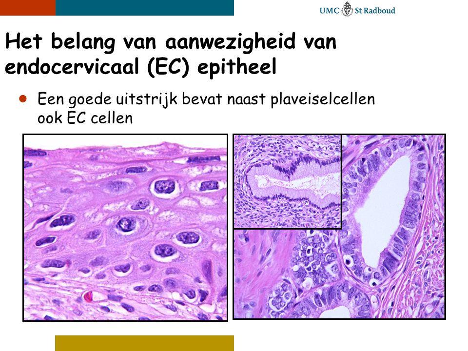 Het belang van aanwezigheid van endocervicaal (EC) epitheel