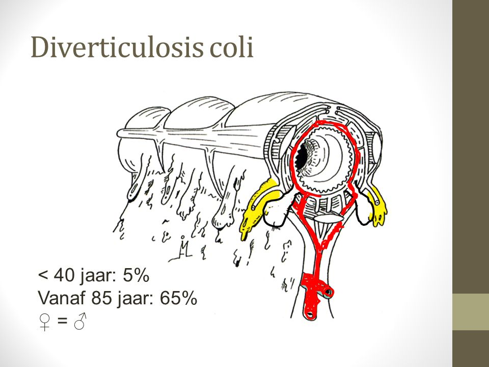 Diverticulosis coli < 40 jaar: 5% Vanaf 85 jaar: 65% ♀ = ♂