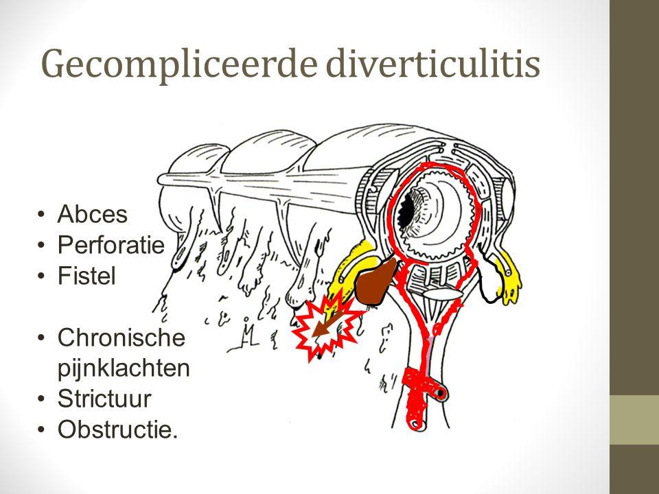 Gecompliceerde diverticulitis