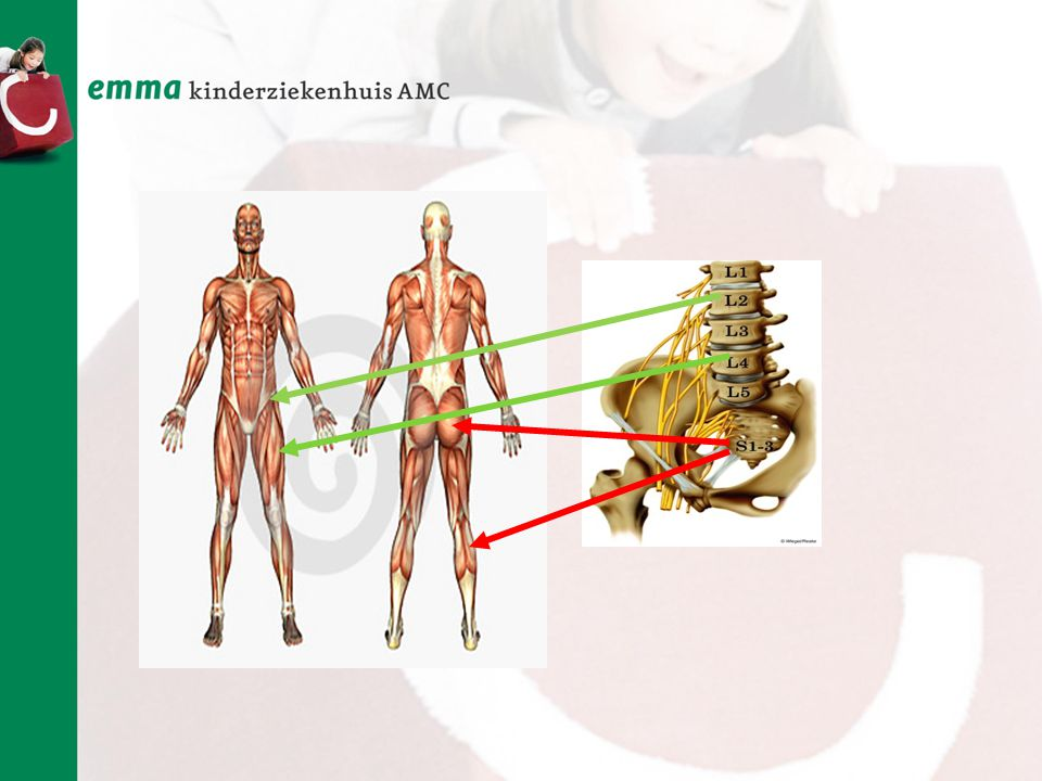 Welke spier levert de meeste kracht om te lopen