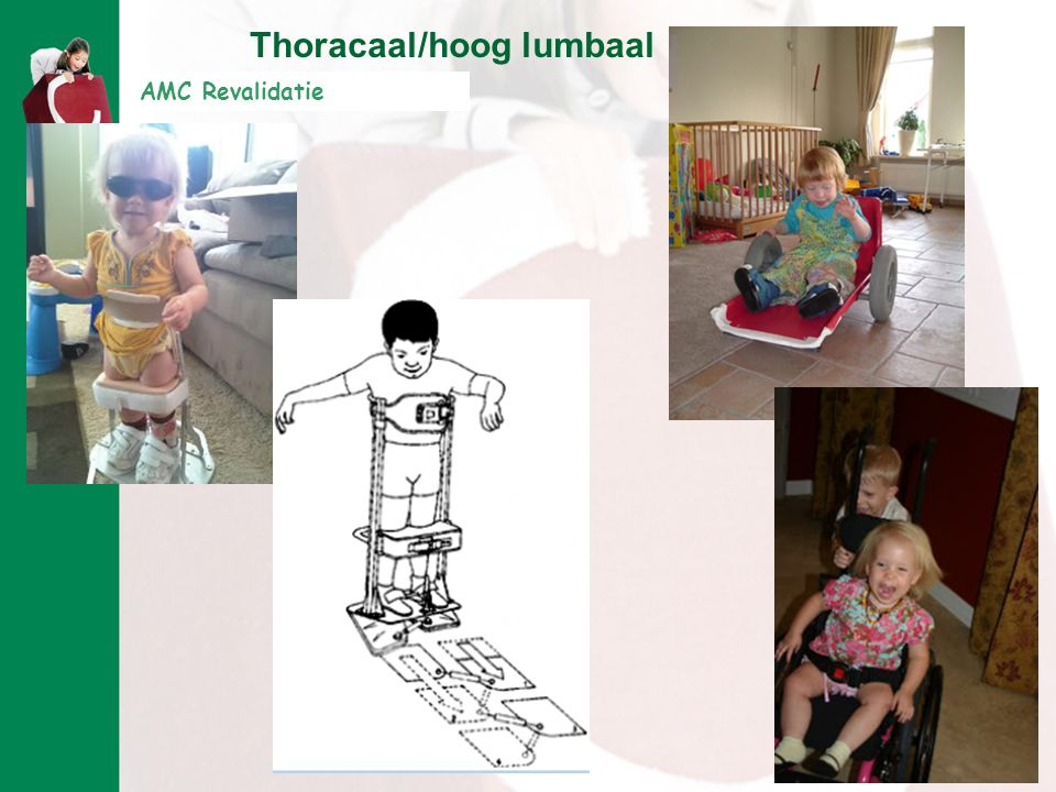 Thoracaal/hoog lumbaal