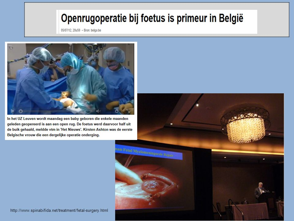 2012 eerste kind geopereerd in Belgie