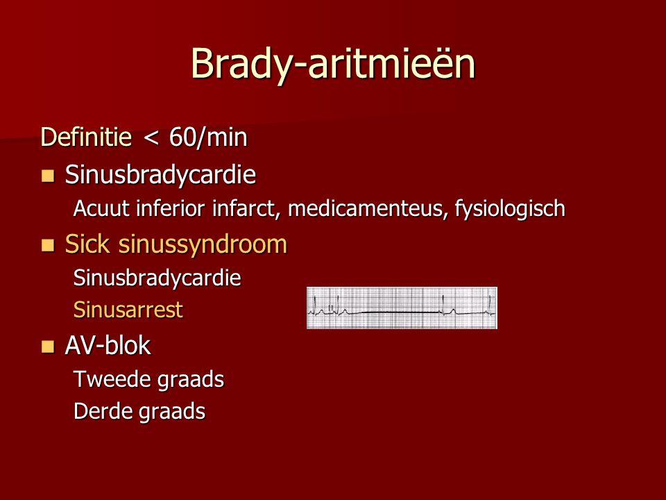 Brady-aritmieën Definitie < 60/min Sinusbradycardie