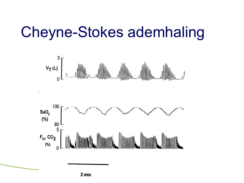 Cheyne-Stokes ademhaling