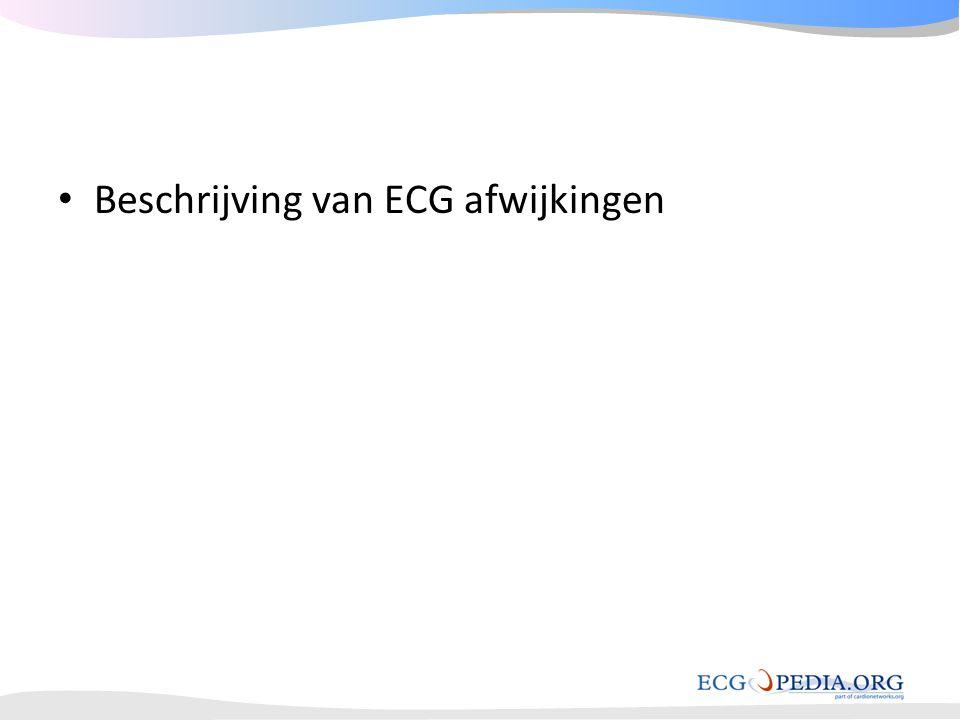 Beschrijving van ECG afwijkingen