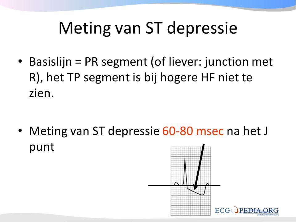 Meting van ST depressie
