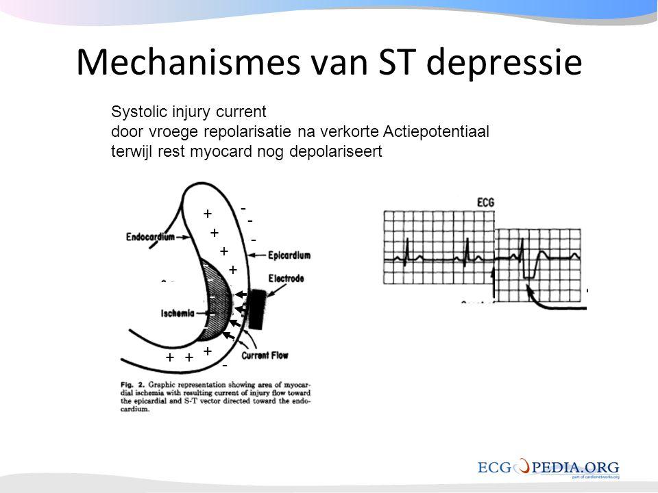 Mechanismes van ST depressie