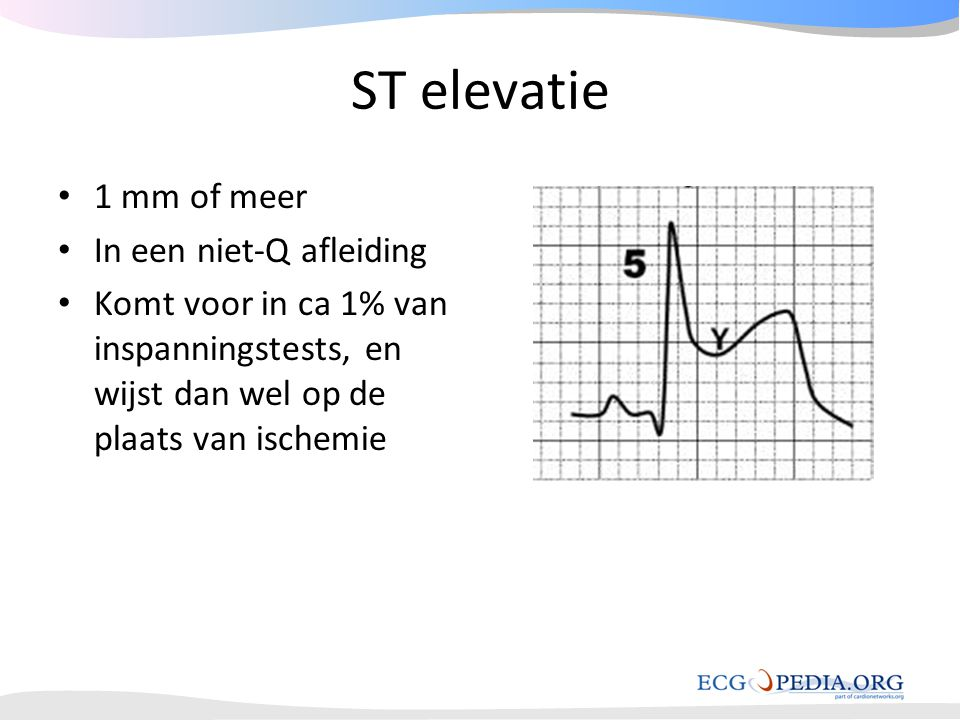 ST elevatie 1 mm of meer In een niet-Q afleiding