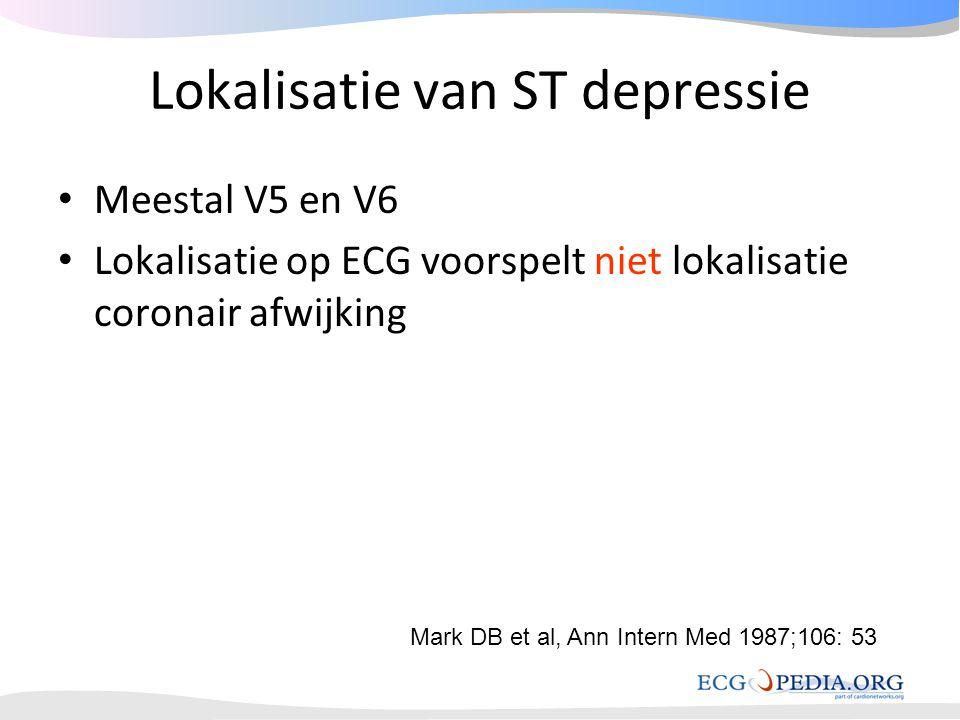 Lokalisatie van ST depressie