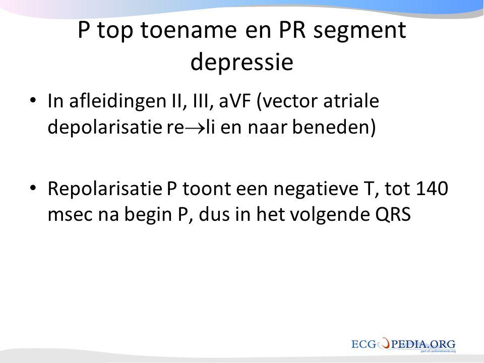 P top toename en PR segment depressie