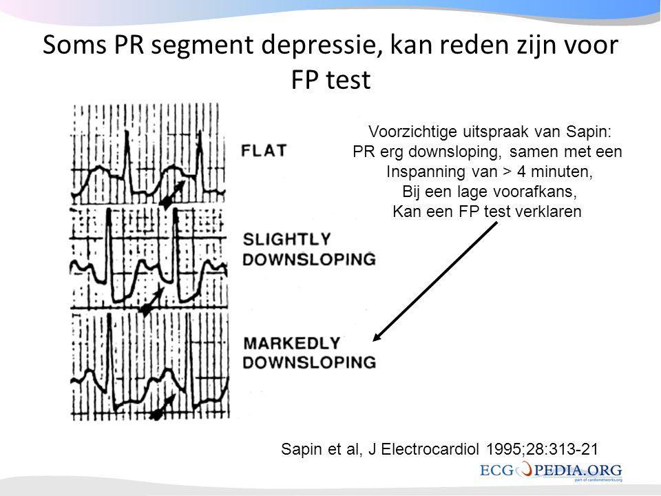 Soms PR segment depressie, kan reden zijn voor FP test