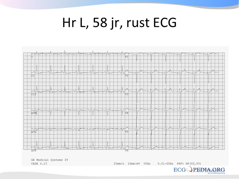 Hr L, 58 jr, rust ECG