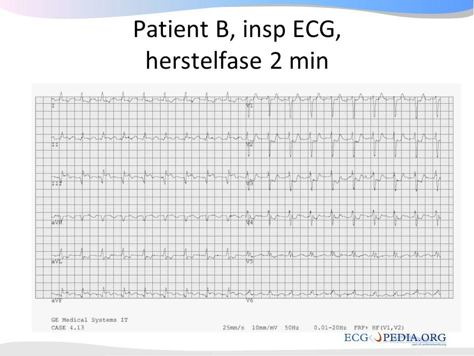 Patient B, insp ECG, herstelfase 2 min