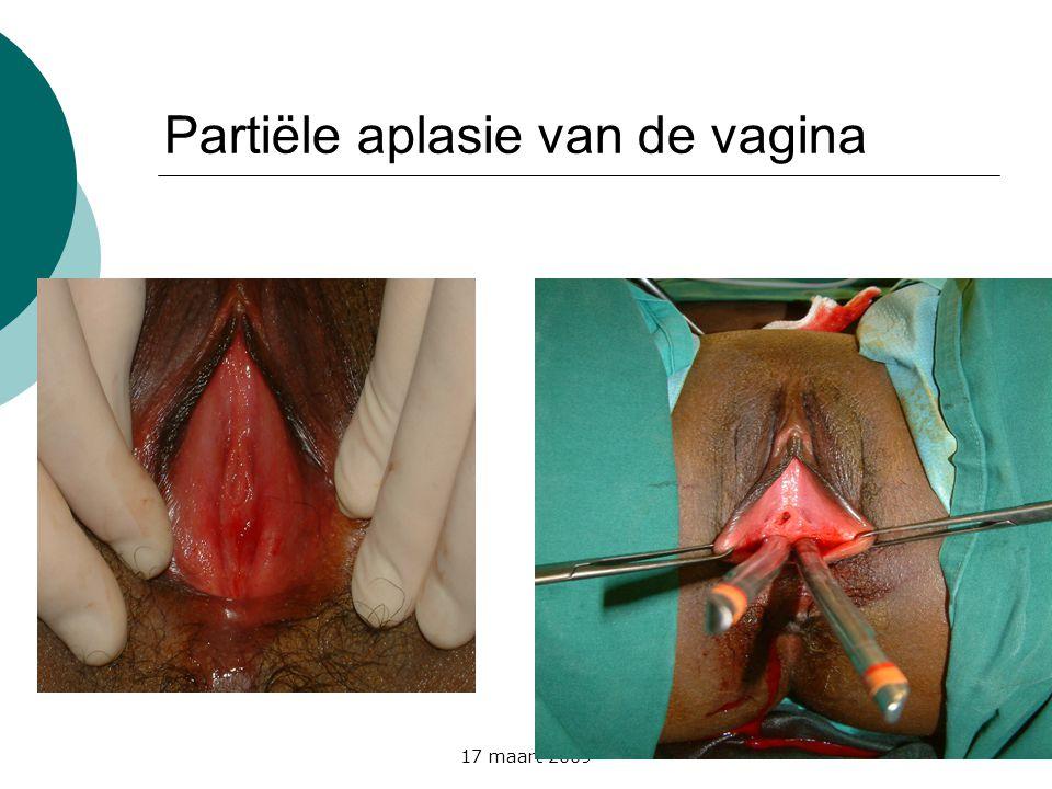 Partiële aplasie van de vagina