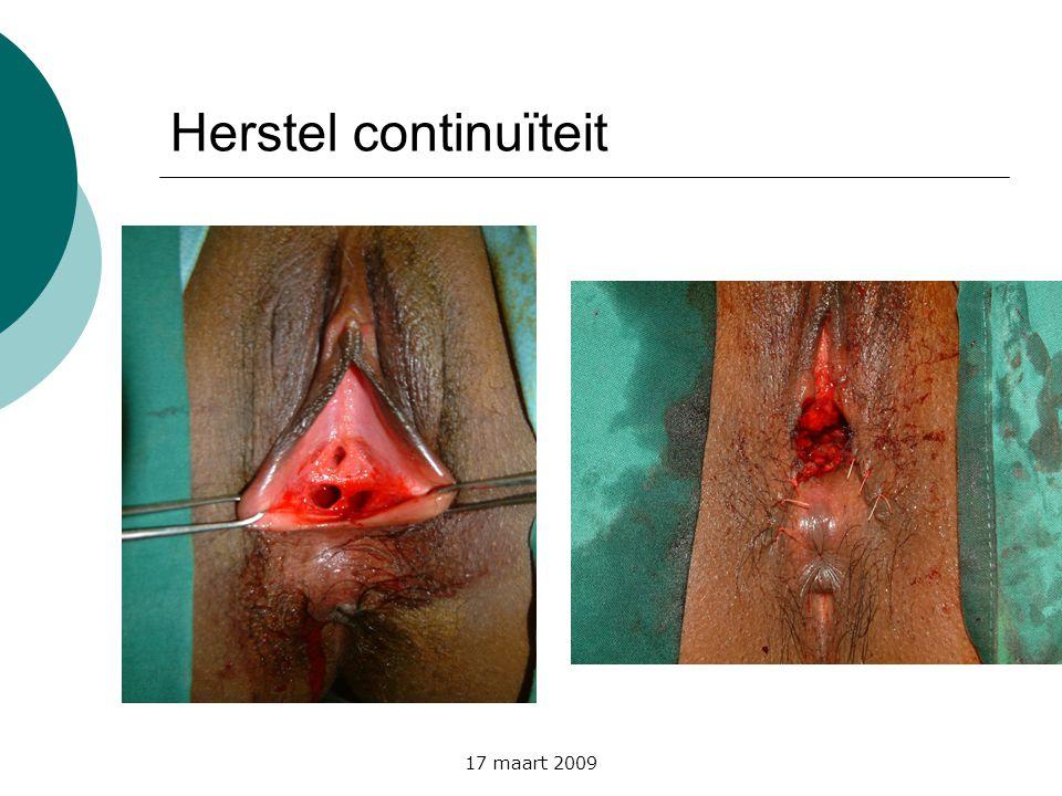 Herstel continuïteit 17 maart 2009