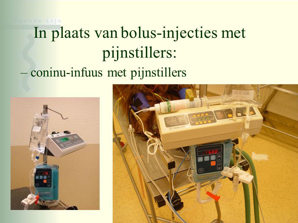 In plaats van bolus-injecties met pijnstillers: