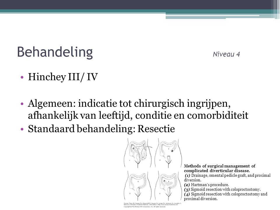 Behandeling Niveau 4 Hinchey III/ IV