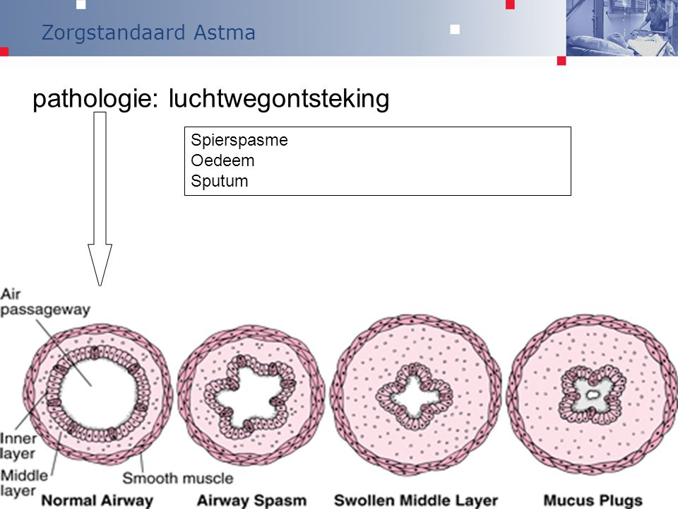 pathologie: luchtwegontsteking