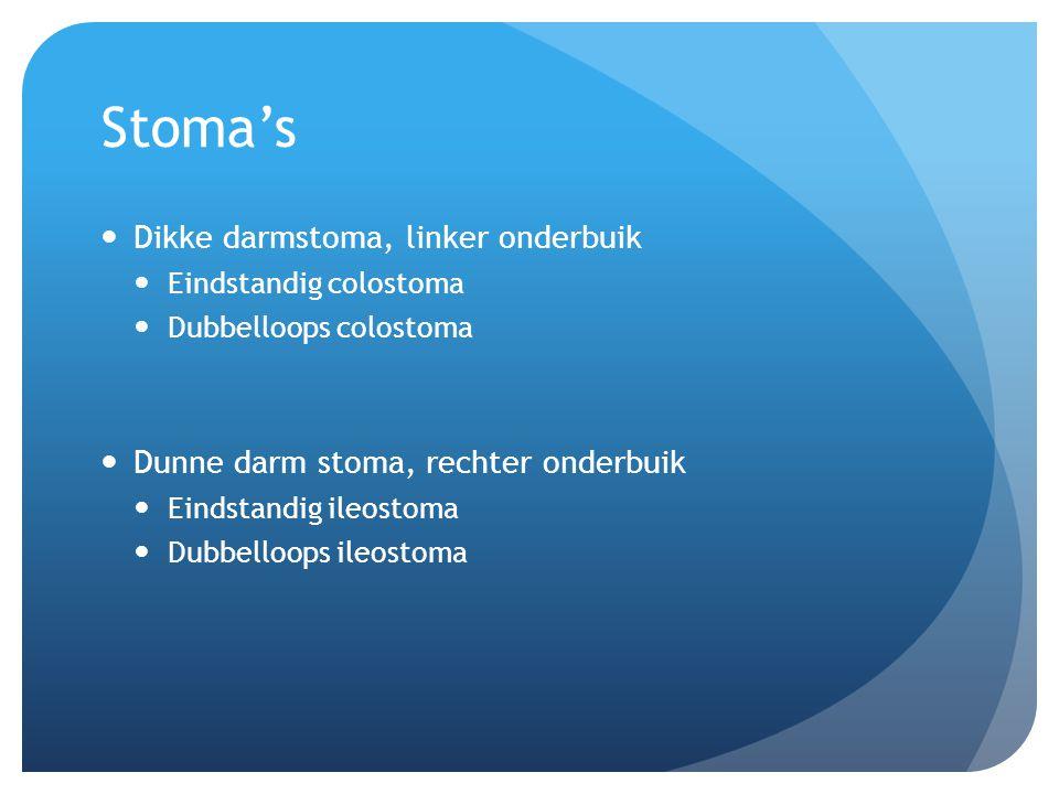 Stoma's Dikke darmstoma, linker onderbuik