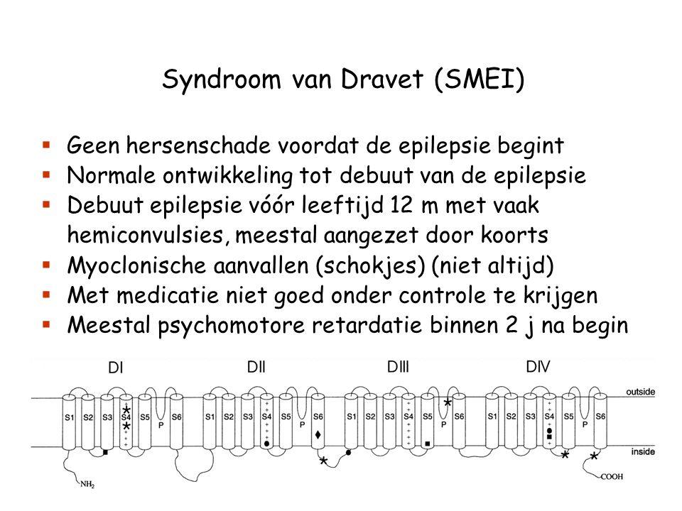 Syndroom van Dravet (SMEI)
