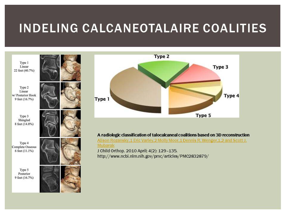 Indeling calcaneotalaire coalities