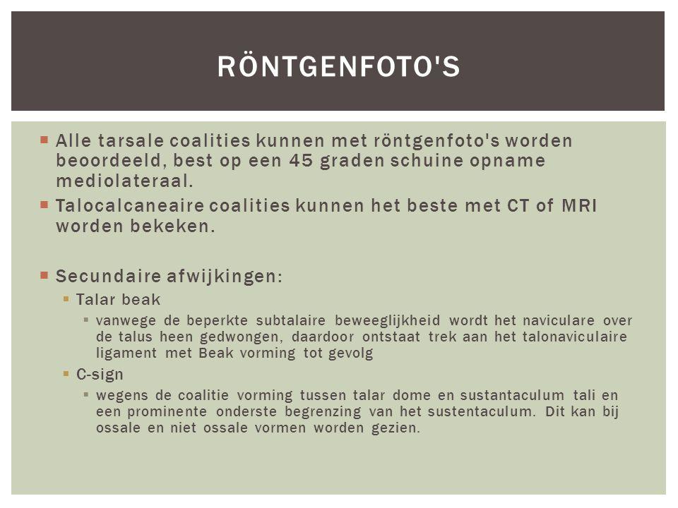 Röntgenfoto s Alle tarsale coalities kunnen met röntgenfoto s worden beoordeeld, best op een 45 graden schuine opname mediolateraal.