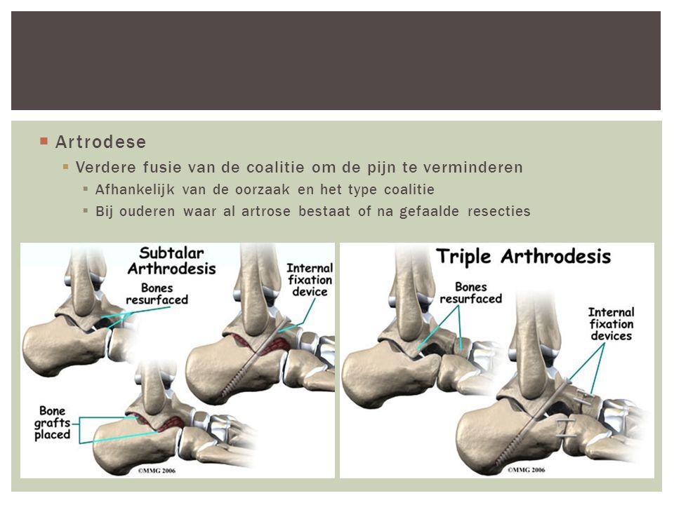 Artrodese Verdere fusie van de coalitie om de pijn te verminderen