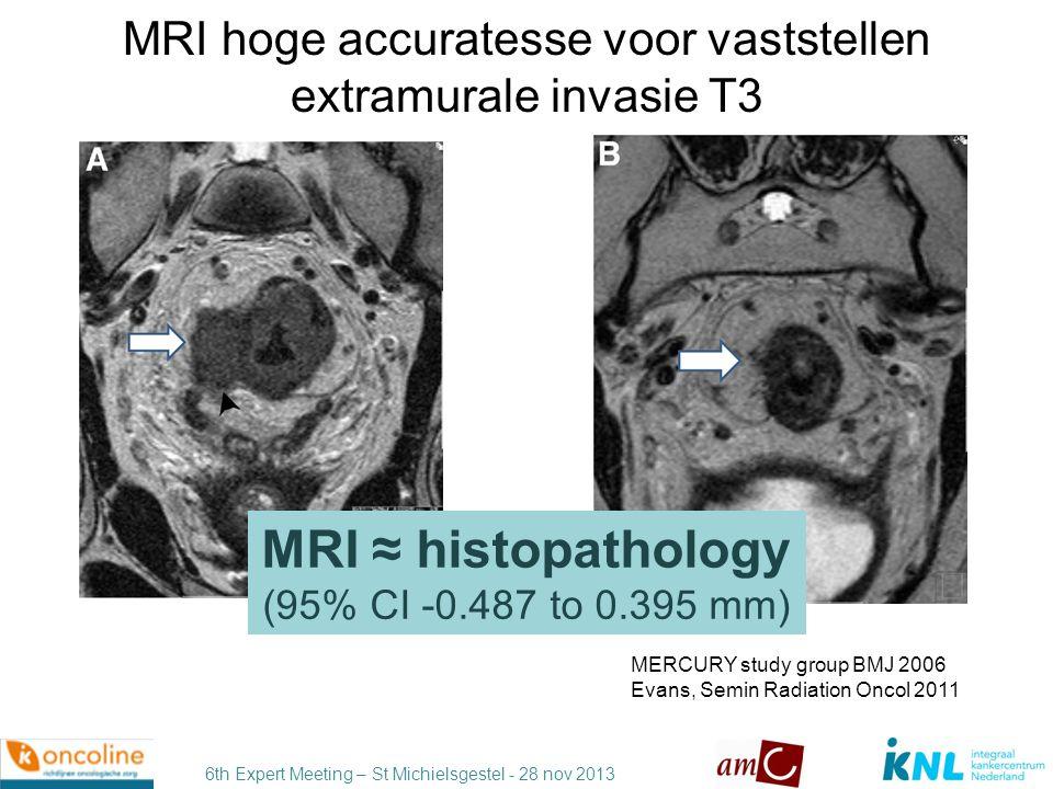 MRI hoge accuratesse voor vaststellen extramurale invasie T3