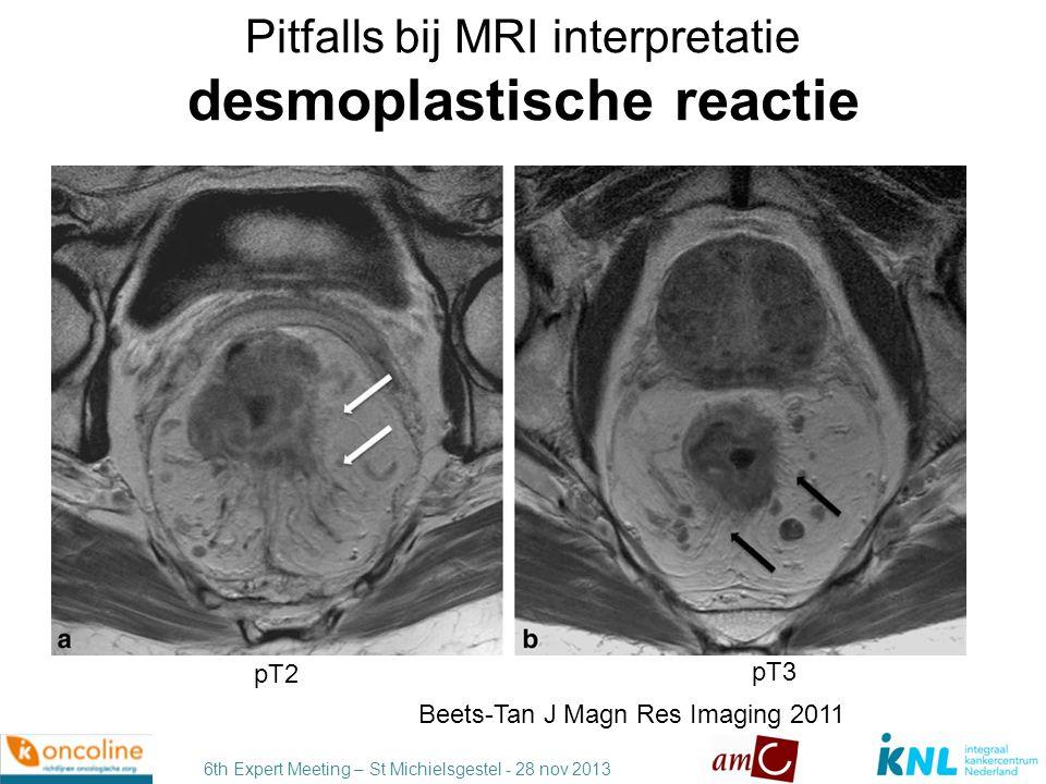Pitfalls bij MRI interpretatie desmoplastische reactie